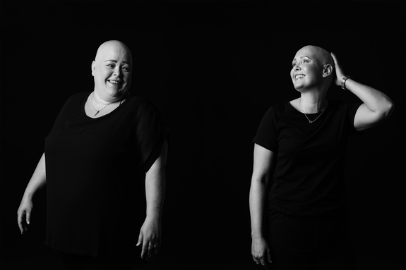 Eirik Jeistad - Alopecia - Hel uten hår